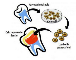 Bioteeth Stem
