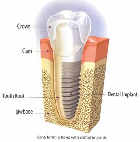 implants_glendale