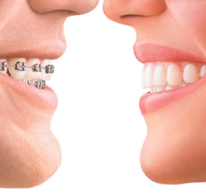invisalign braces vs traditional braces