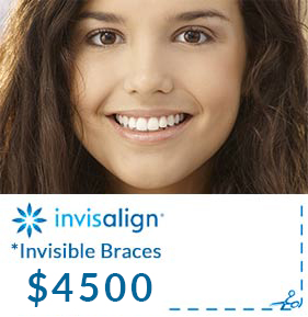 Invisalign Promotion