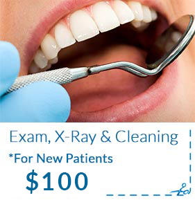 Exam, X-ray and Cleaning Promotion