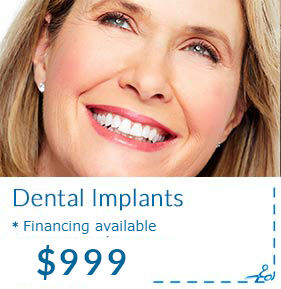 Dental Implants Promotion