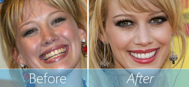 Veneers before and after teeth