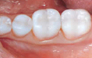 Glendale White Fillings