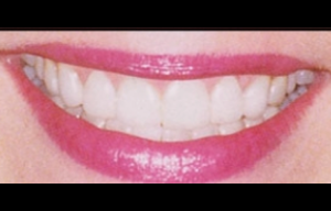 Teeth Whitening Glendale After