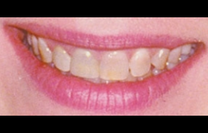 Teeth Whitening Glendale Before