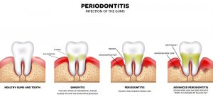 Different Periodontal Diseases