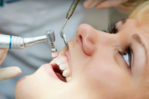 Tooth Polishing