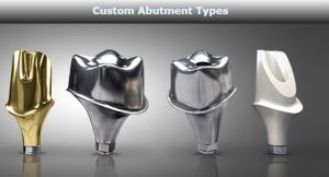 Custom Abutment Types