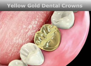 Dental Implant Gold Crown