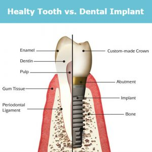 Healthy Tooth vs Implant Tooth