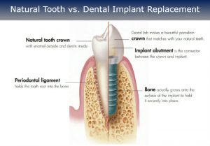 Natural Tooth vs. Dental Implants