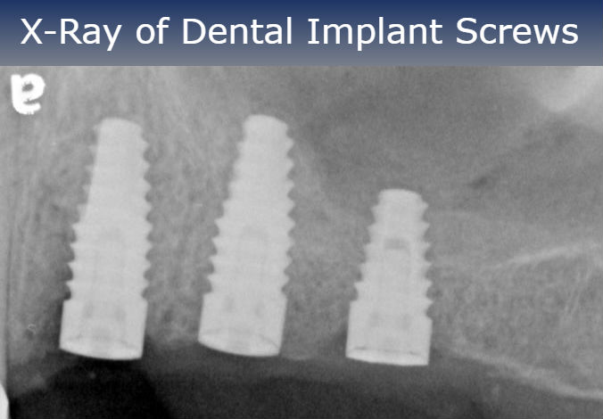 Xray of Dental Implant Srews1