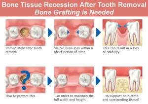 Why Bone Grafting Is Done