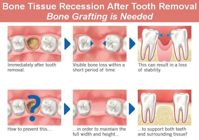 Dentist Glendale Bone Grafting Types How And Why Is It Done Smile Makeover Of La