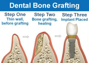 Dental Bone Grafting
