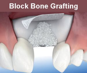Block Bone Grafting