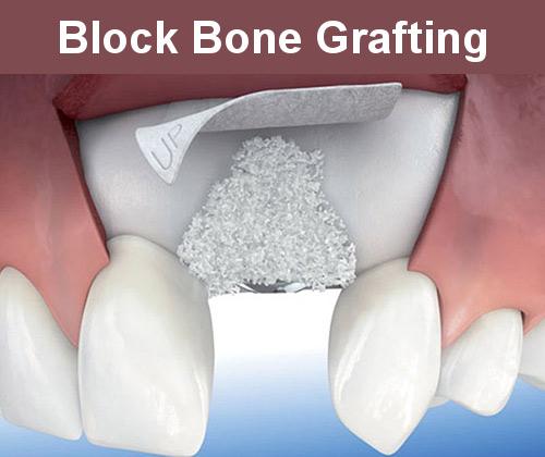Block Bone Grafting