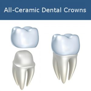 All-Ceramic Dental Crowns