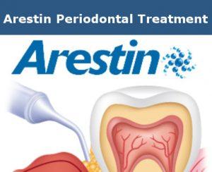 Arestin Periodontal Treatment