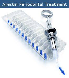 Arestin Periodontal Treatment