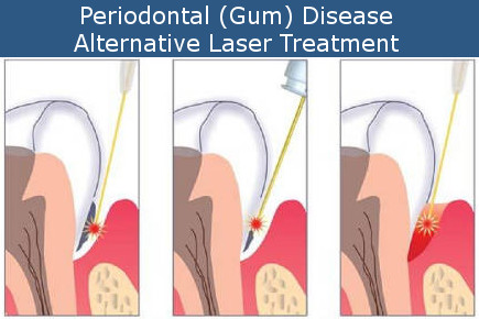 Periodontal Laser Treatment Steps
