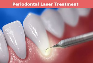 Periodontal Laser Treatmenr