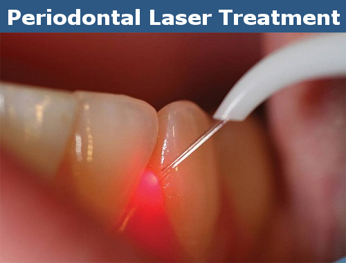 Advantages of Periodontal Laser Treatment