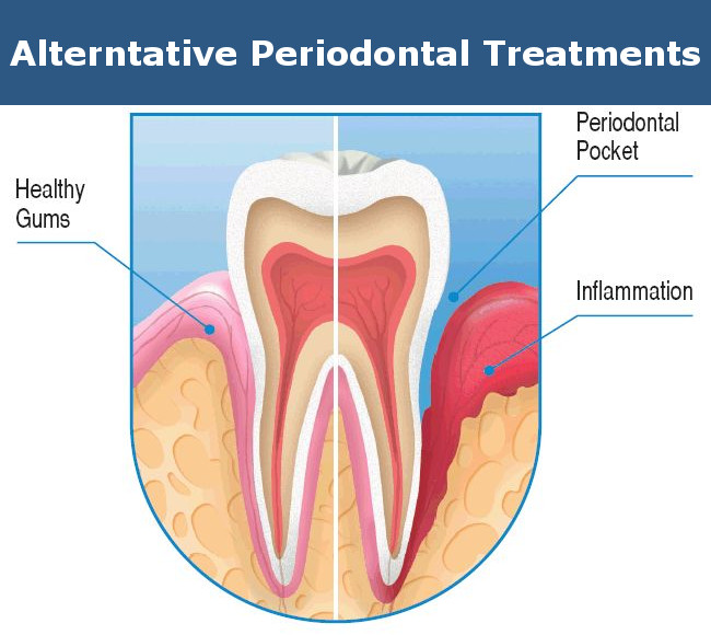 Alternative Periodontal Treatments