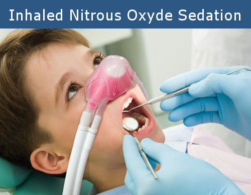 Inhaled Dental Sedation