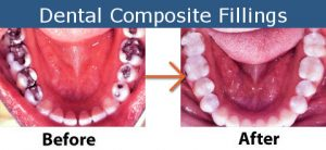 Dental Composite Fillings Before and After