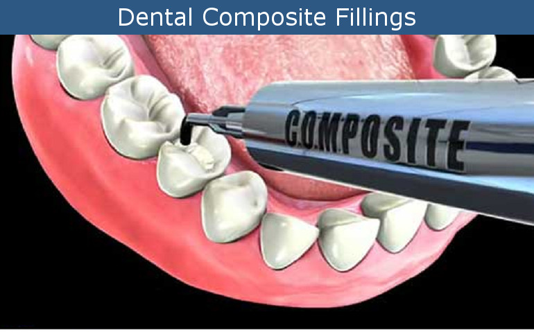 Composite Fillings in Glendale