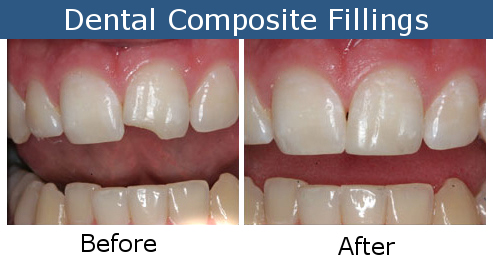 Composite Dental Fillings Before and After