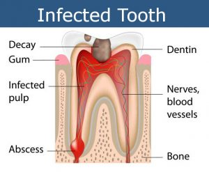 Infected Tooth