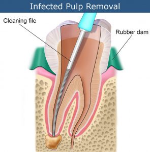 Root Canal Infected Pulp Removal