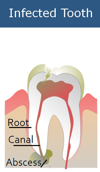 Infected Tooth Needs Root Canal Treatment