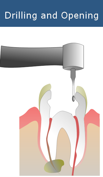 Drilling and Opening Root Canals