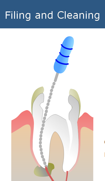 Filling and Cleaning Root Canals