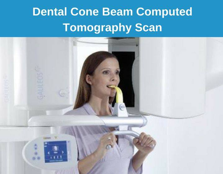 CBCT Scan for dental implant