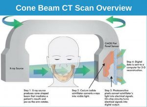 Cone Beam CT Scan for Dental Implants