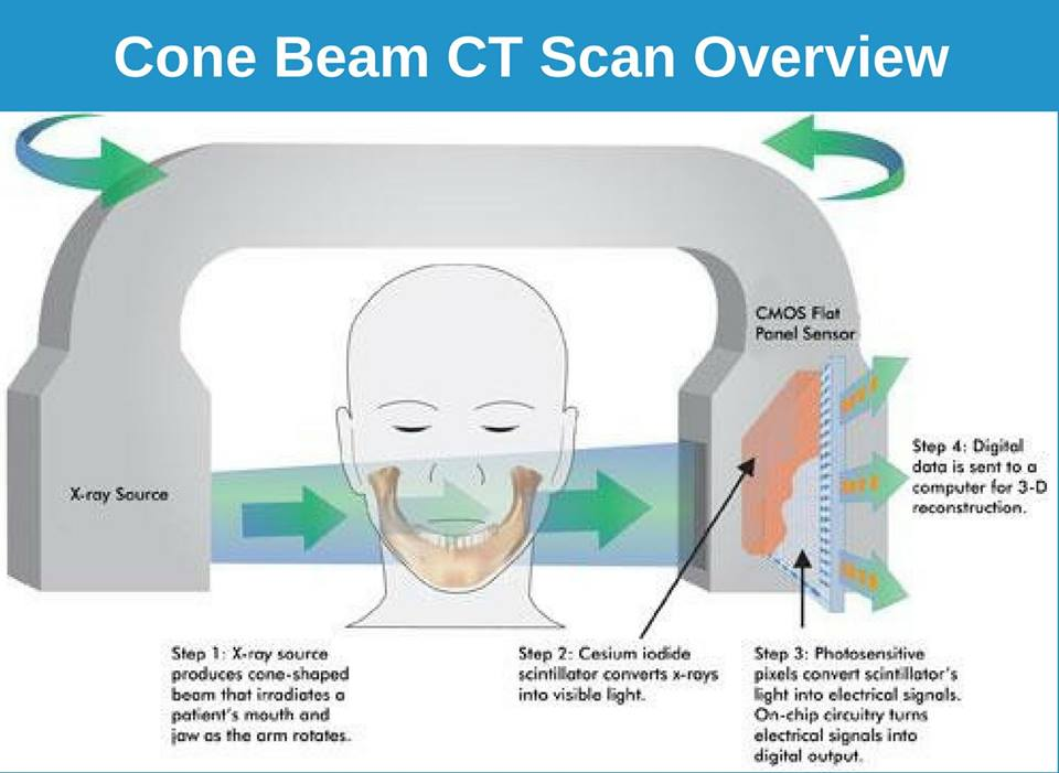 Cone Beam Ct Dental Scan Glendale Smile Makeover Of La