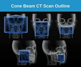 Cone Beam Technology Scan for Dental Implants Field