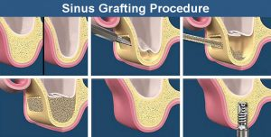 Sinus Lift Graft Procedure
