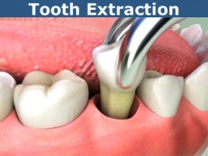 surgical tooth removal - extraction
