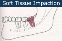 soft tissue impact wisdom tooth removal
