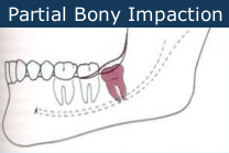 partial bony impact wisdom tooth removal