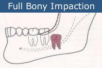 full bony impact wisdom tooth removal