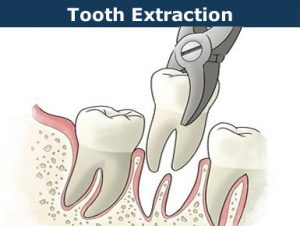 simple tooth removal - extraction