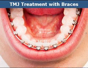 TMJ braces