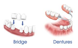 bridges dentures